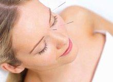 Center Acupuncture