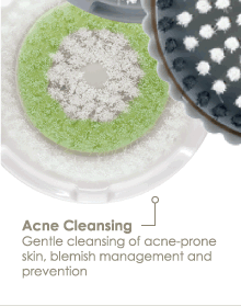 Acne Cleansing Gentle cleansing of acne-prone skin, blemish management and prevention