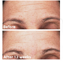 Photos taken after 12 weeks of using PREVAGE® Anti-aging + Intensive Repair Daily Serum. Results may vary.