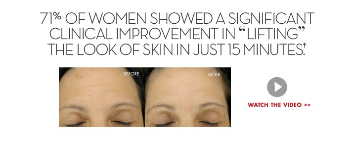 """71% OF WOMEN SHOWED A SIGNIFICANT CLINICAL IMPROVEMENT IN """"LIFTING"""" THE LOOK OF SKIN IN JUST 15 MINUTES.† WATCH THE VIDEO."""