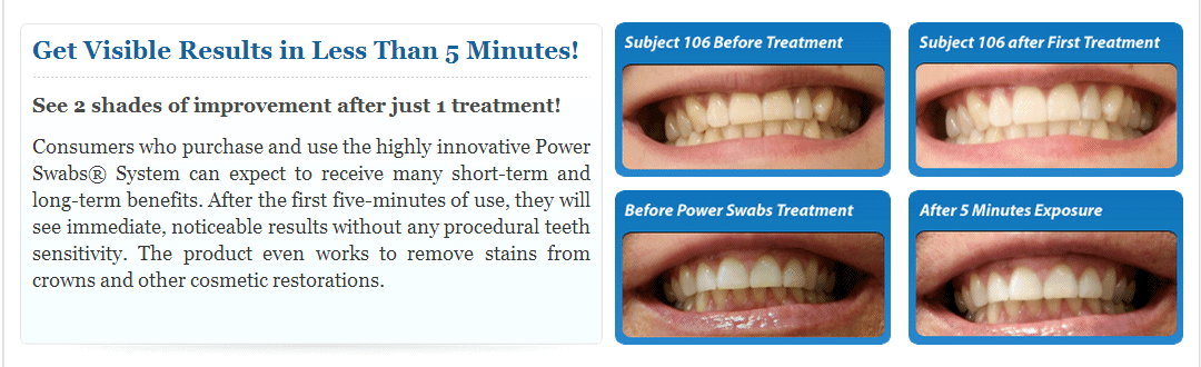 Clinically Proven to Whiten Teeth in 5 Minutes! 50% Off - Normally $59.90 - Your Price $29.95 + S/P