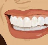 Oral-Health_Elaine-Liu_post-300x300_3