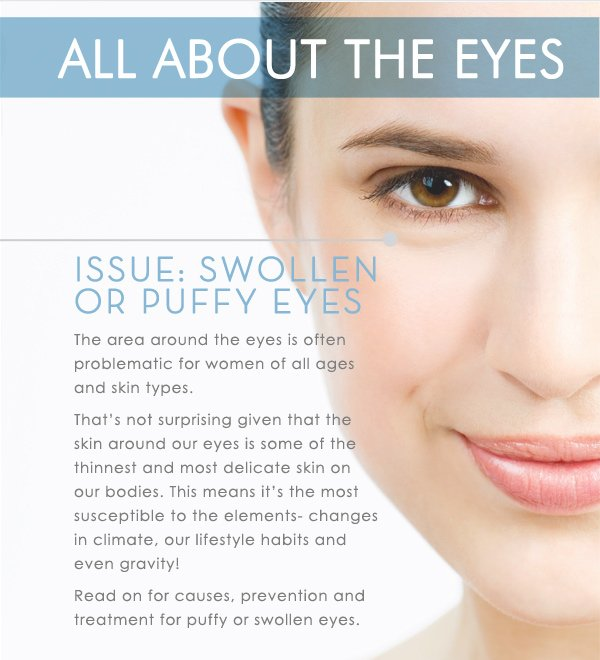 All about eyes: puffy or swollen eyes