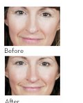 Photos taken after 12 weeks of using PREVAGE® anti-aging daily serum. Results may vary.