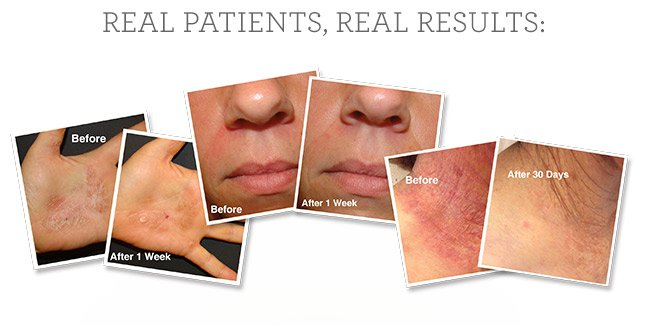 Real patients, real results!