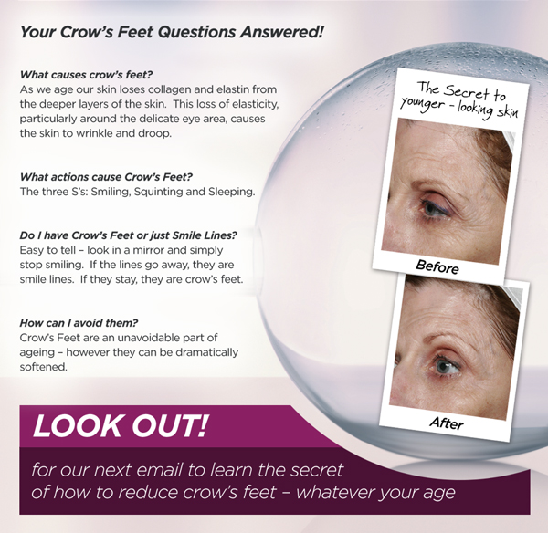 Your Crow's Feet questions answered!