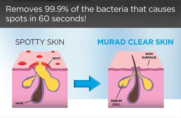 Removes 99.9% of the bacteria that causes spots in 60 seconds!