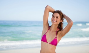 Up to 95% Off Year of Unlimited Laser Hair Removal