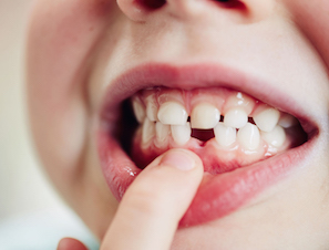 What Can Baby Teeth Tell Us about Autism and Heavy Metals?
