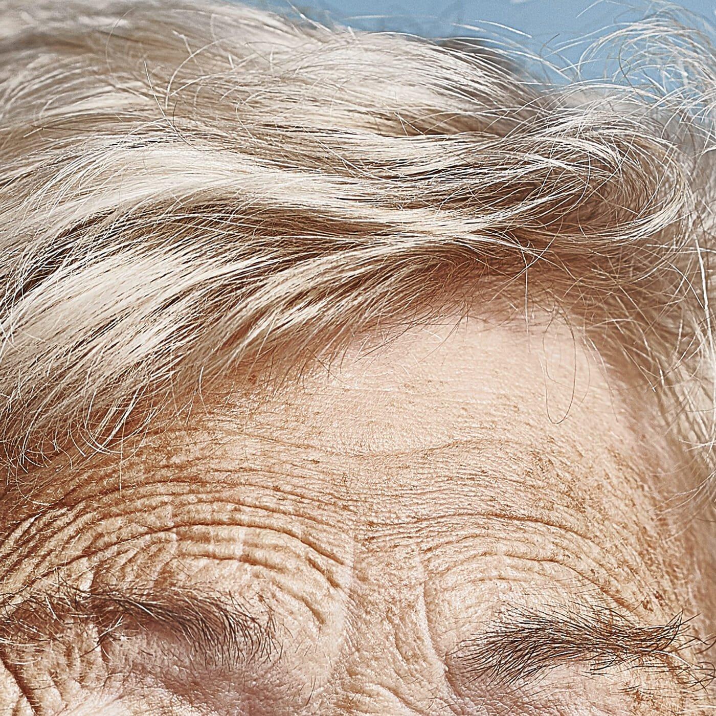 Forehead-Wrinkles-Man-Repeller-feature-2.jpg