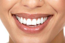 Teeth Whitening - In-Office -