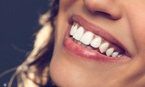 Teeth-Whitening Treatments