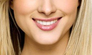 48% Off Dental Implant